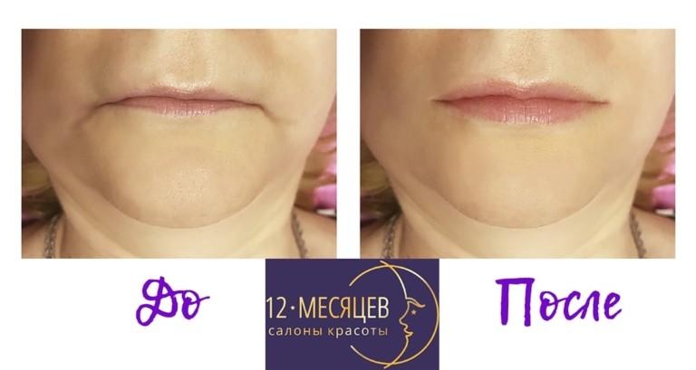 в спб салоны увеличение губ