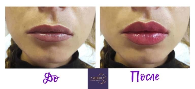 гиалуроновая кислота в губы увеличение и контурная пластика